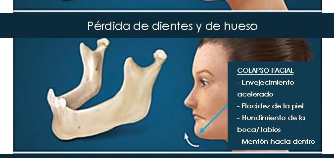 Pérdida de dientes en adultos