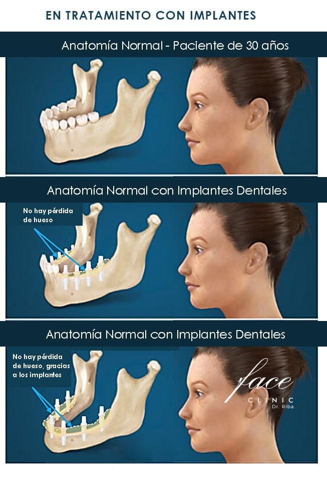 Pérdida de dientes por periodontitis