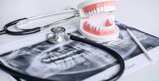 pérdida de hueso dental maxilar