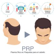 Plasma rico en plaquetas o PRP para el pelo