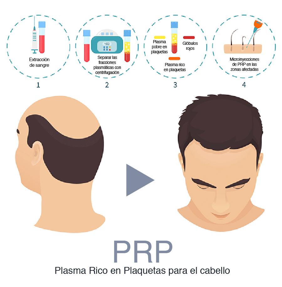 Plasma rico en plaquetas o PRP para el pelo en Madrid