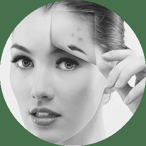 Plexer acne Madrid