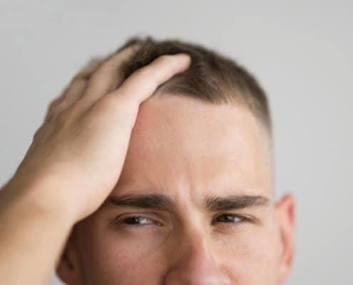 Porque se cae el pelo en hombres