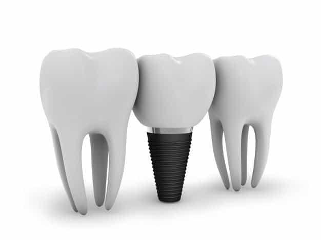 Precio implante dental en Madrid