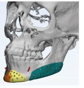 Prótesis facial