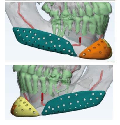 Prótesis faciales de mandíbula