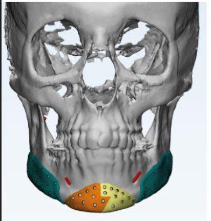 Prótesis faciales