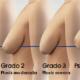 ¿Qué es la ptosis de pecho?
