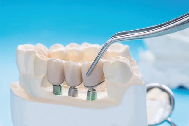¿Puedo ponerme implantes dentales si tengo enfermedad periodontal?