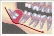 Quiste radicular odontogénico: Síntomas y tratamiento