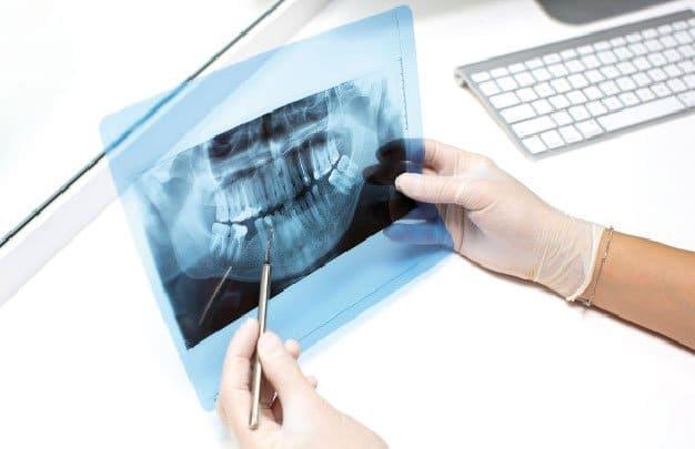 Radiología dental en Madrid