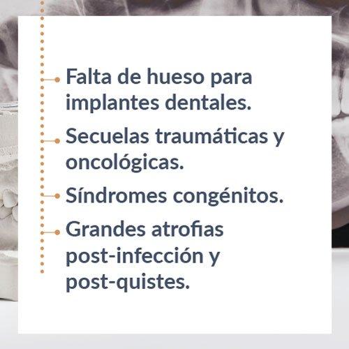 Reconstrucción maxilar en Huelva