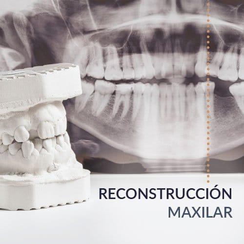 Reconstrucción maxilar en Madrid