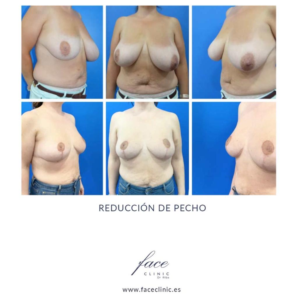 Resultados de la reducción de mamas