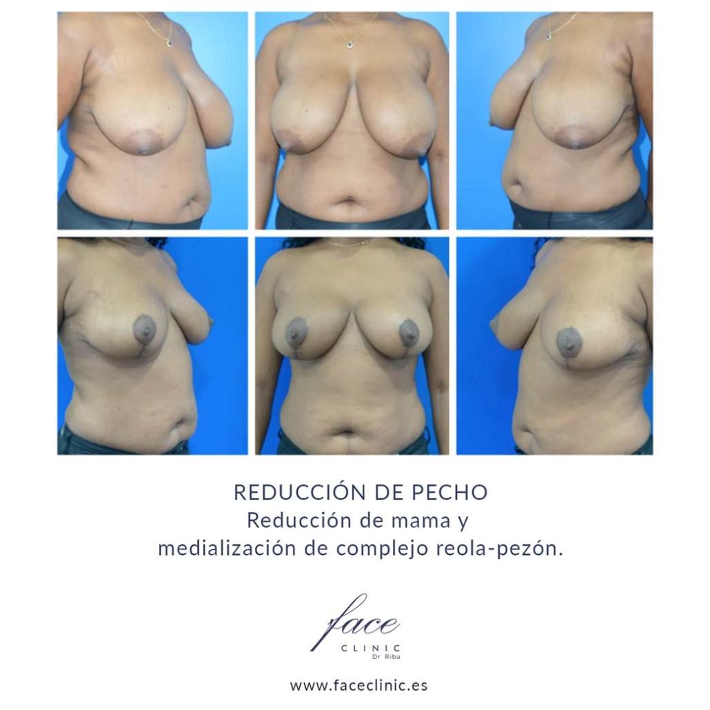 Antes y después de la reduccion de pecho