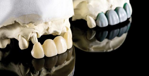 Rehabilitación del maxilar superior con implantes
