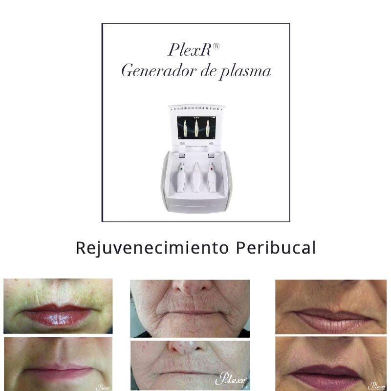 Rejuvenecimiento peribucal Plexer