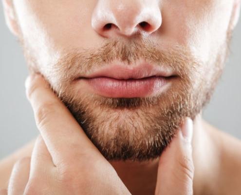 Tratamiento Remodelación de barbilla