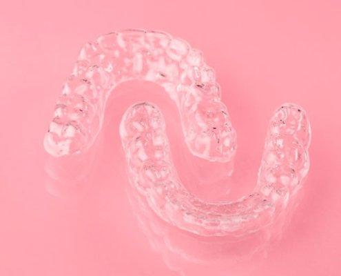 Retenedores de ortodoncia transparentes