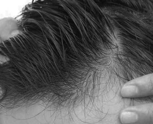 Riesgos y complicaciones posibles tras un trasplante capilar