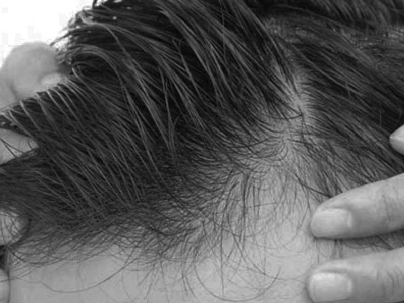 Riesgos y complicaciones posibles tras un implante capilar