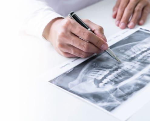 Los riesgos de los implantes dentales