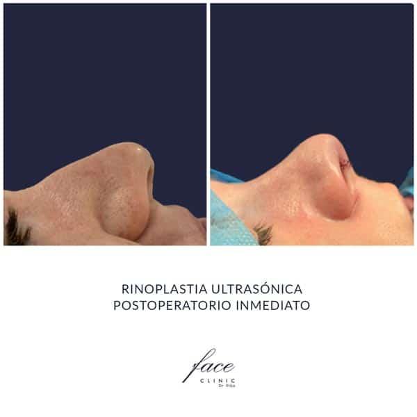 Rinoplastia ultrasonica antes y despues en España