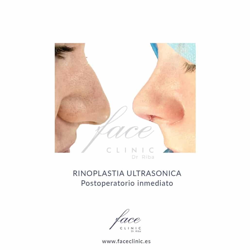 Rinoplastia ultrasonica antes y despues en Madrid
