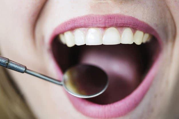 saburra lingual tratamiento