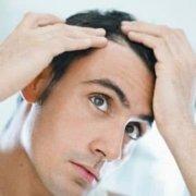 Tengo entradas en el pelo ¿Hay tratamiento?