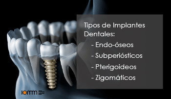 Tipos de implantes dentales en Madrid