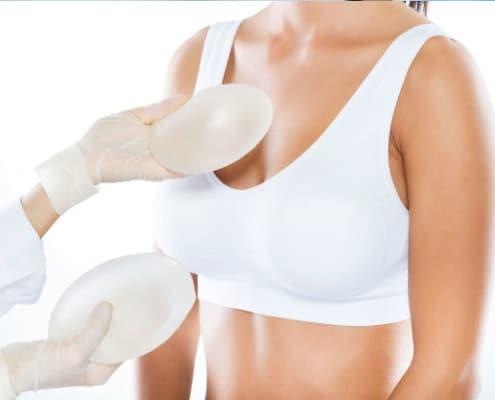 ¿Qué tipos de prótesis mamarias hay?