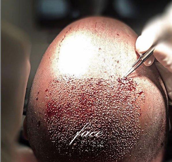 Trasplante de pelo solo coronilla