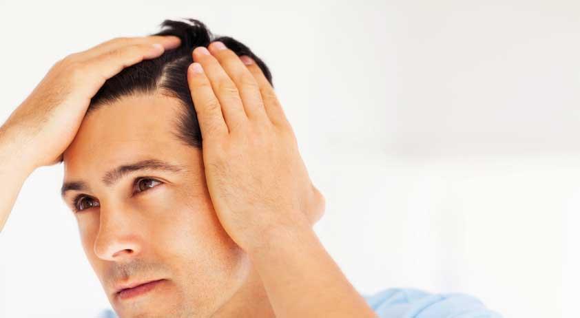 Tratamientos capilares para alopecia