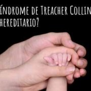 Síndrome Treacher Collins tratamiento